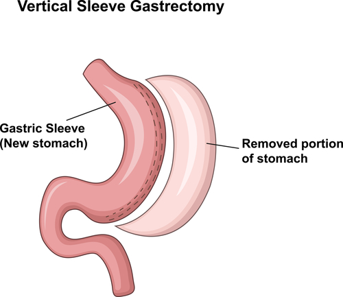 5 Gastric Bypass Surgery Diagrams
